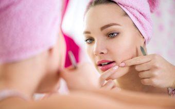 Cum ingrijesti tenul acneic