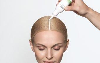 Bolile pe care le poate ascunde căderea părului