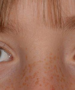 Există o serie întreagă de afecțiuni ale ochilor la copii care pot ridica probleme ale vederii. Important este să fie depistate cât mai repede și tratate corect.