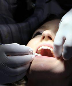 Gravidă la dentist? Bineînțeles! De ce nu?!