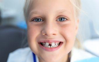 De ce este importantă ortodonția pentru dinții copiilor?